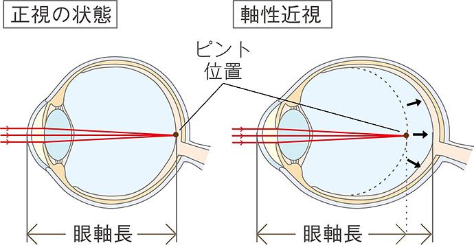 眼軸長が伸びてしまうイメージ