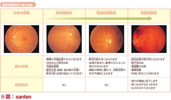 糖尿病網膜症の進行イメージ