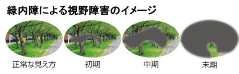 緑内障の視野障害の進行イメージ