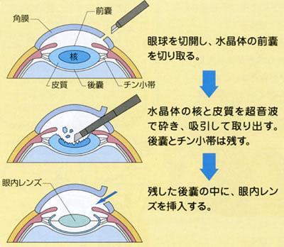 白内障日帰り手術の術式のイメージ